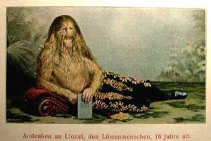 Sideshow Freaks lionel the lion faced man stephan bibrowski Vintage Post Card