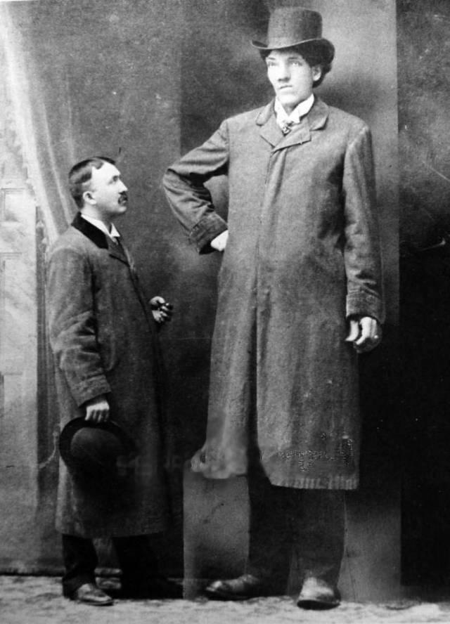 Canadian Circus Sideshow Freak. Edouard Beaupré 8 2.5 Giant  1880s