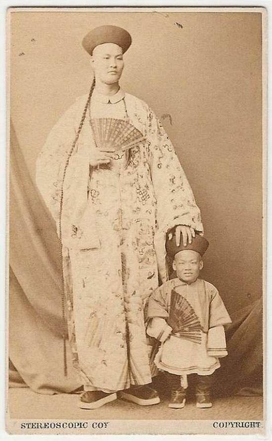 chinese dwarf